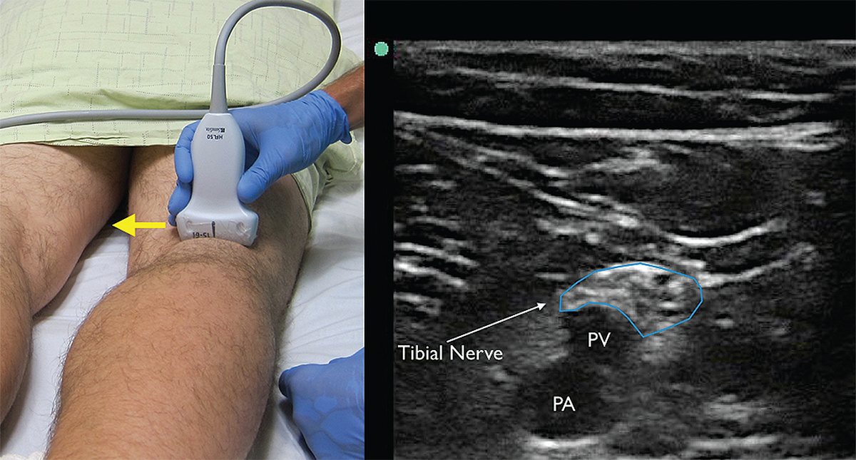 us guided popliteal nerve block